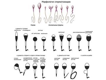 плохая спермограмма что делать Коряжма